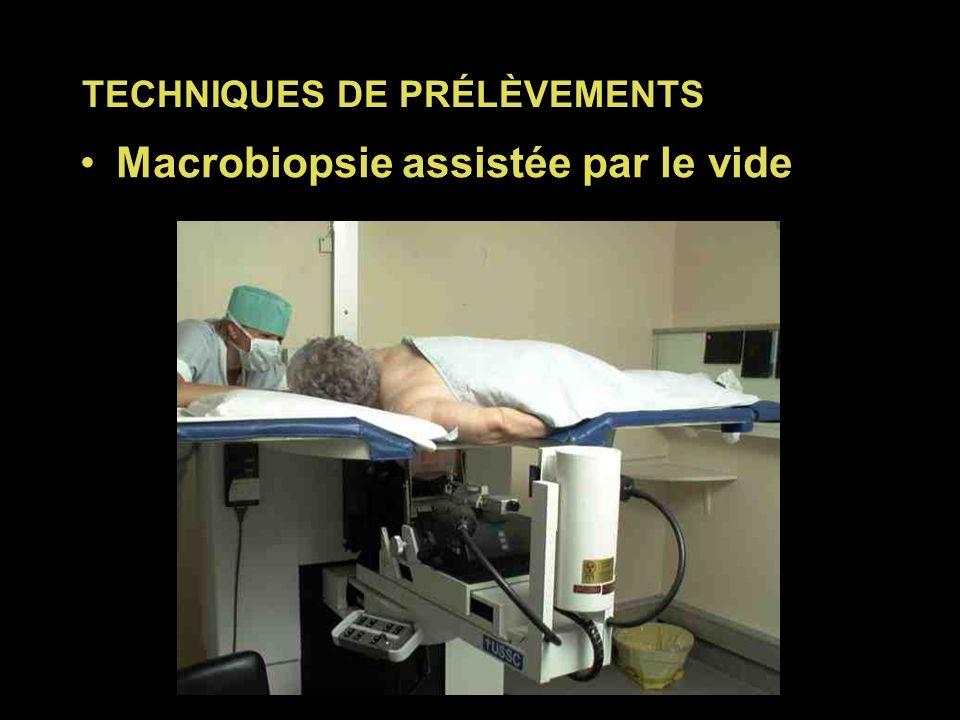 Macrobiopsie assistée par le vide PRÉLÈVEMENTS PERCUTANÉS TECHNIQUES DE PRÉLÈVEMENTS
