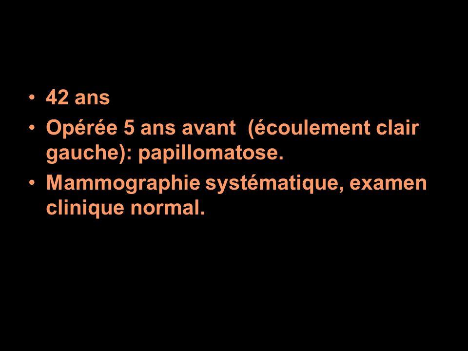 42 ans Opérée 5 ans avant (écoulement clair gauche): papillomatose. Mammographie systématique, examen clinique normal.