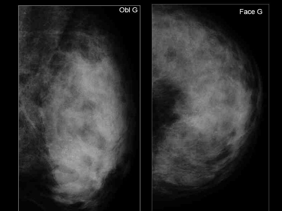 Mme D. Simone Mammographie systématique Mammographie antérieure normale