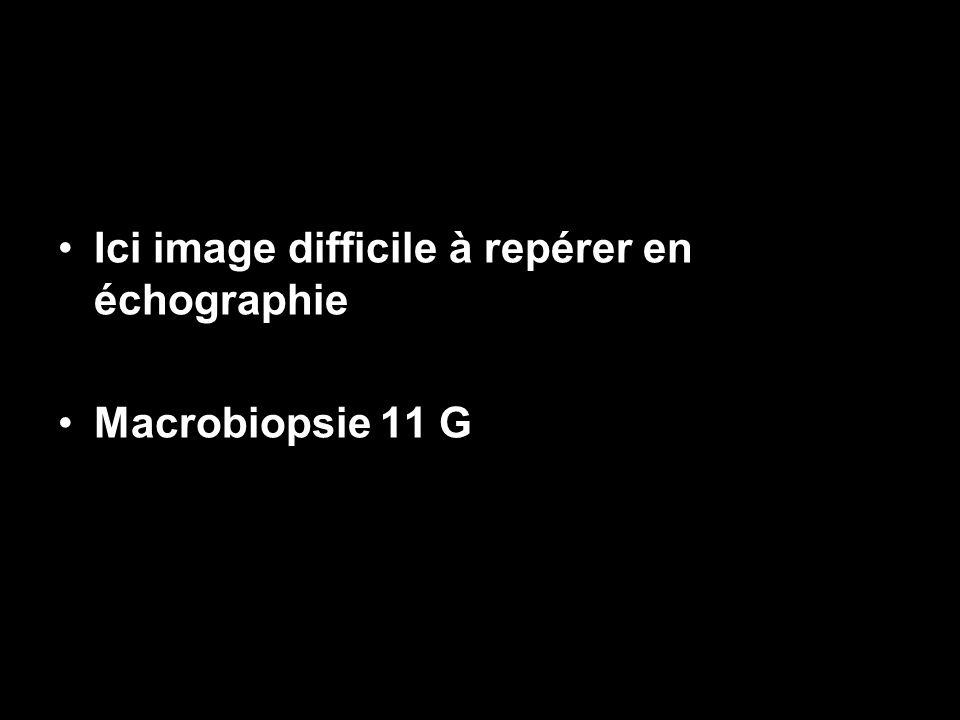 Ici image difficile à repérer en échographie Macrobiopsie 11 G