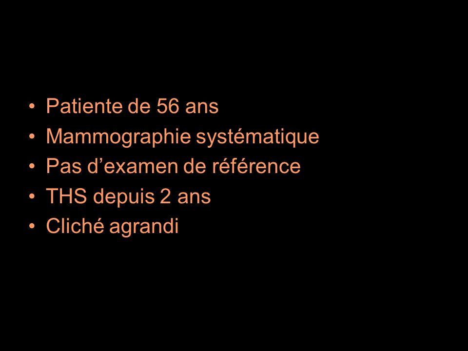 Patiente de 56 ans Mammographie systématique Pas dexamen de référence THS depuis 2 ans Cliché agrandi
