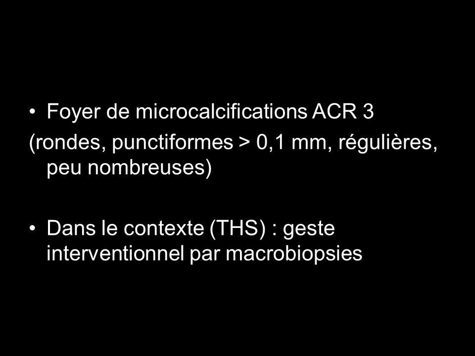 Foyer de microcalcifications ACR 3 (rondes, punctiformes > 0,1 mm, régulières, peu nombreuses) Dans le contexte (THS) : geste interventionnel par macr