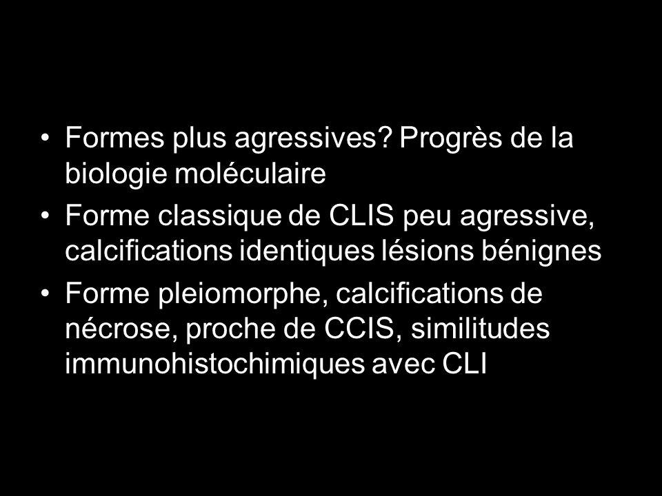 Formes plus agressives? Progrès de la biologie moléculaire Forme classique de CLIS peu agressive, calcifications identiques lésions bénignes Forme ple