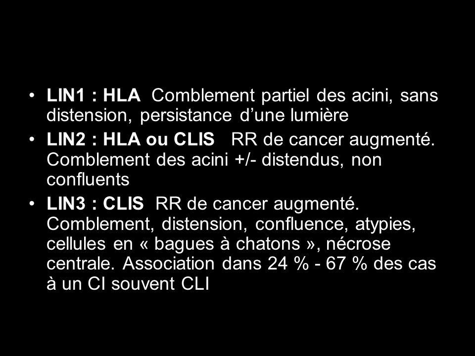 LIN1 : HLA Comblement partiel des acini, sans distension, persistance dune lumière LIN2 : HLA ou CLIS RR de cancer augmenté. Comblement des acini +/-