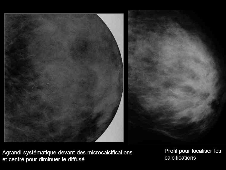 Examens radiologiques complémentaires (hors IRM) réalisables dans un délai de 7 jours (grade de la recommandation: A) RV de microbiopsie accessible dans un délai de 2 semaines HAS/Evaluation des Pratiques 2006