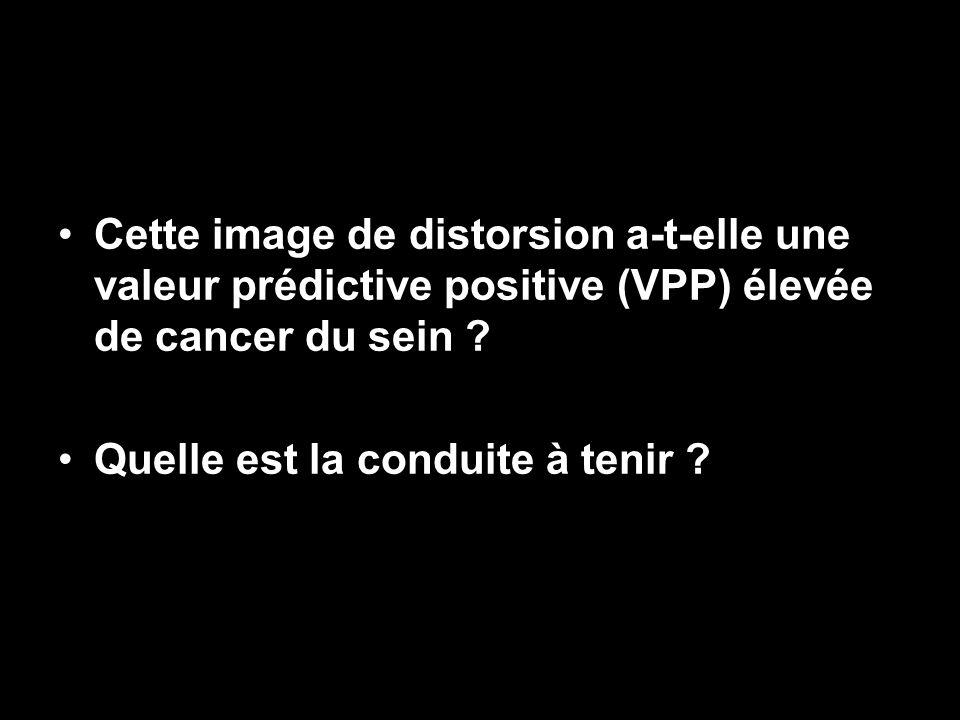 Cette image de distorsion a-t-elle une valeur prédictive positive (VPP) élevée de cancer du sein ? Quelle est la conduite à tenir ?