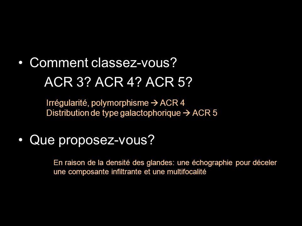 Comment classez-vous? ACR 3? ACR 4? ACR 5? Que proposez-vous? Irrégularité, polymorphisme ACR 4 Distribution de type galactophorique ACR 5 En raison d