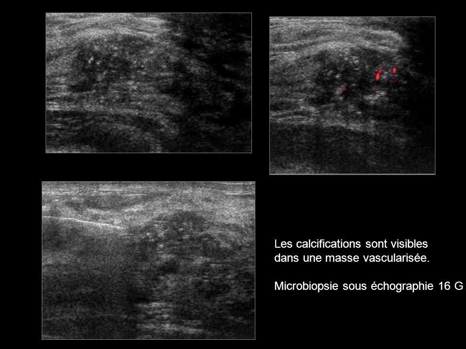 Les calcifications sont visibles dans une masse vascularisée. Microbiopsie sous échographie 16 G