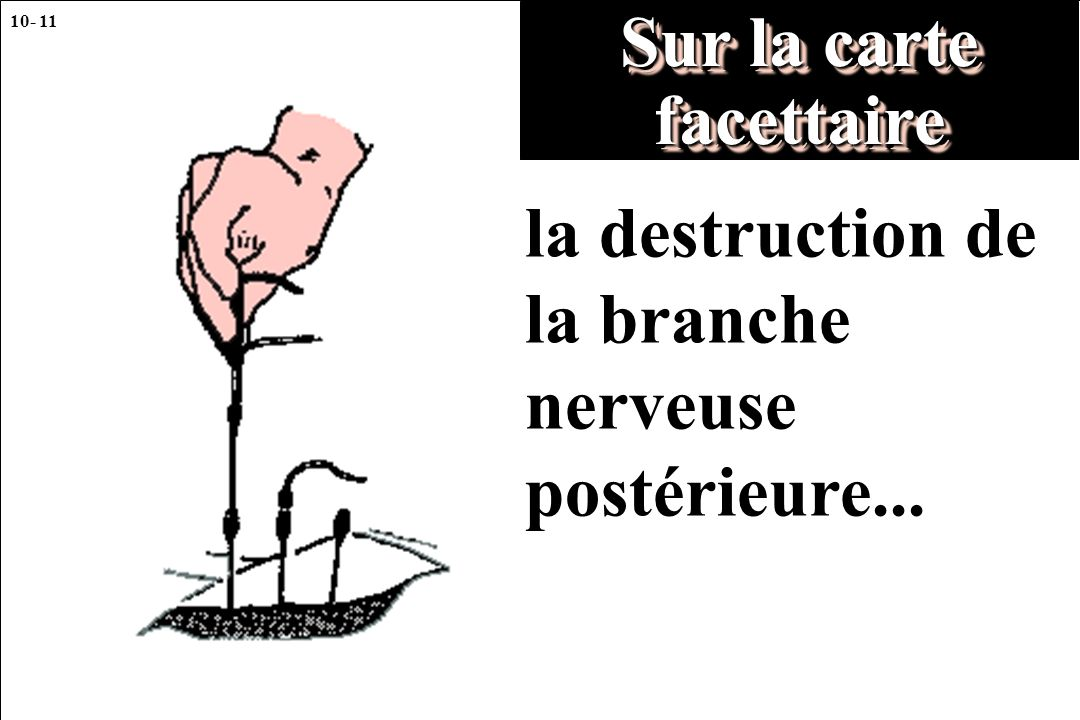 10- 11 Sur la carte facettaire la destruction de la branche nerveuse postérieure...