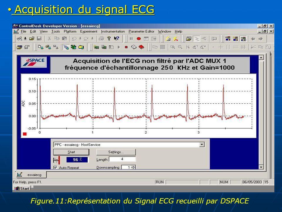 Acquisition du signal ECG Acquisition du signal ECG Figure.11:Représentation du Signal ECG recueilli par DSPACE