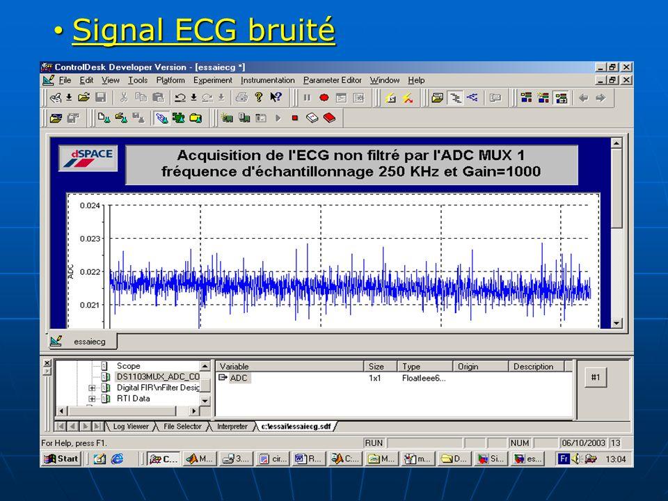 Signal ECG bruité Signal ECG bruité