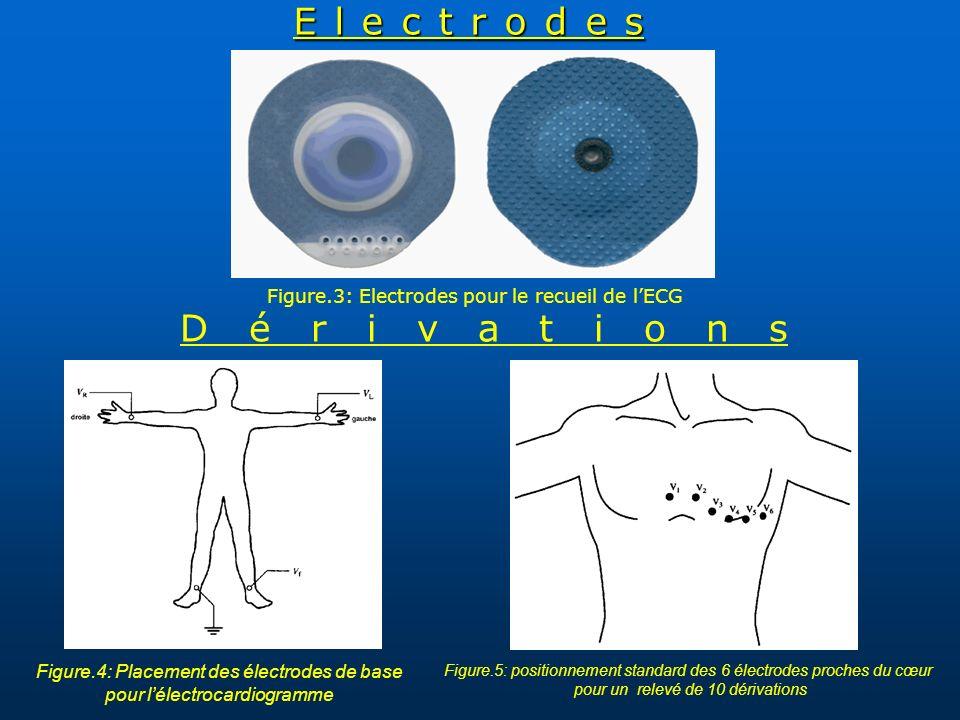 Electrodes Figure.3: Electrodes pour le recueil de lECG Figure.4: Placement des électrodes de base pour lélectrocardiogramme Figure.5: positionnement