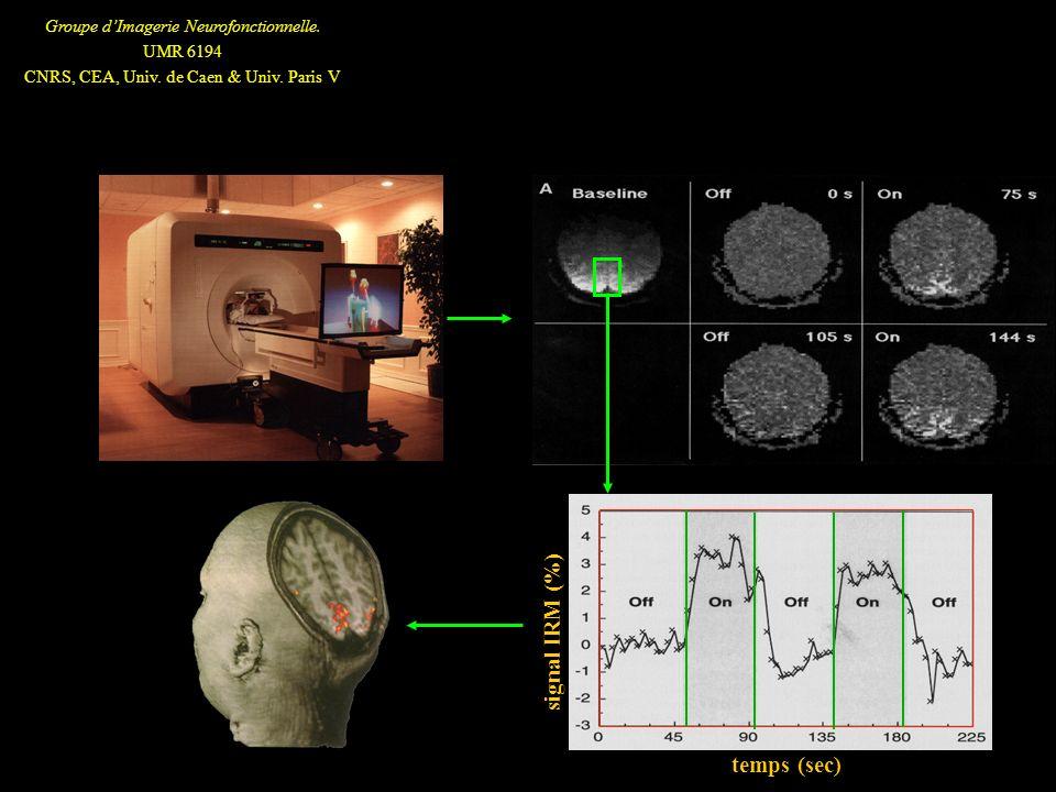 Groupe dImagerie Neurofonctionnelle. UMR 6194 CNRS, CEA, Univ. de Caen & Univ. Paris V temps (sec) signal IRM (%)
