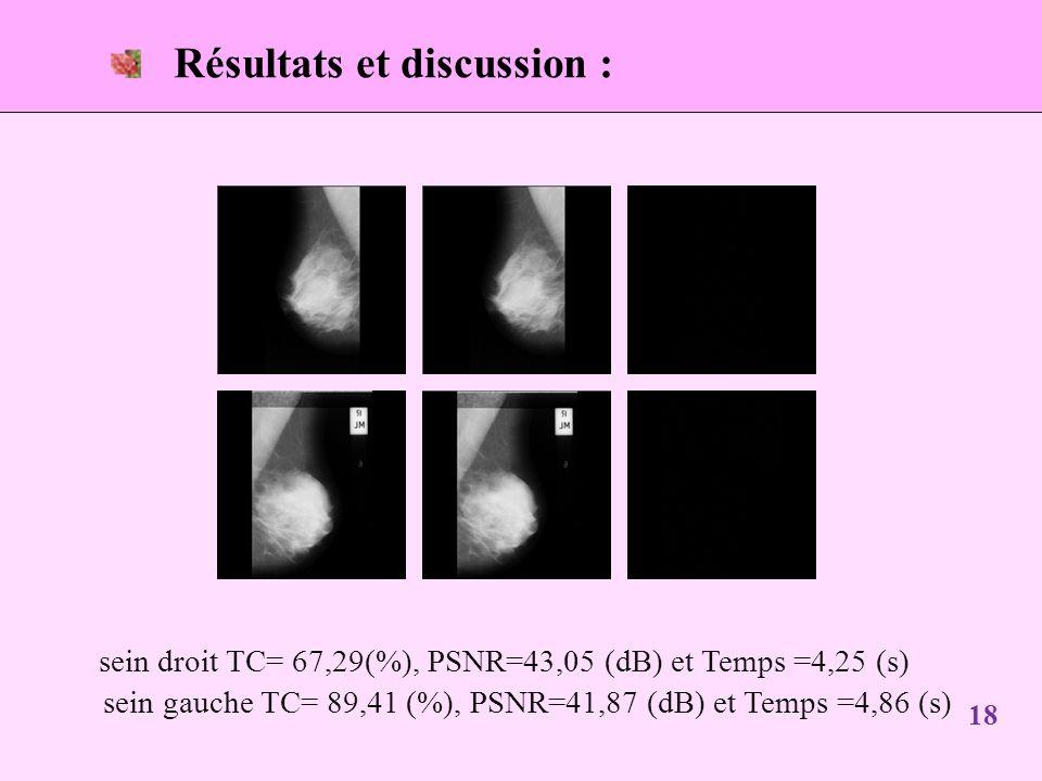 18 Résultats et discussion : sein droit TC= 67,29(%), PSNR=43,05 (dB) et Temps =4,25 (s) sein gauche TC= 89,41 (%), PSNR=41,87 (dB) et Temps =4,86 (s)