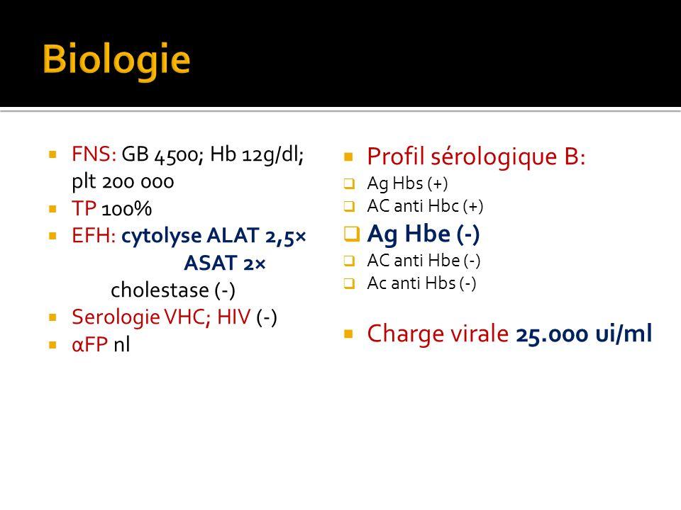 FNS: GB 4500; Hb 12g/dl; plt 200 000 TP 100% EFH: cytolyse ALAT 2,5× ASAT 2× cholestase (-) Serologie VHC; HIV (-) αFP nl Profil sérologique B: Ag Hbs