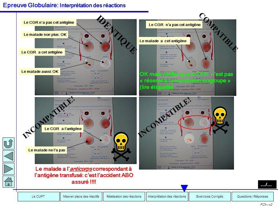 Interprétation des réactionsRéalisation des réactionsMise en place des réactifsExercices CorrigésLe CUPTQuestions / Réponses FCh –v2 AGGLUTINE:NAGGLUT