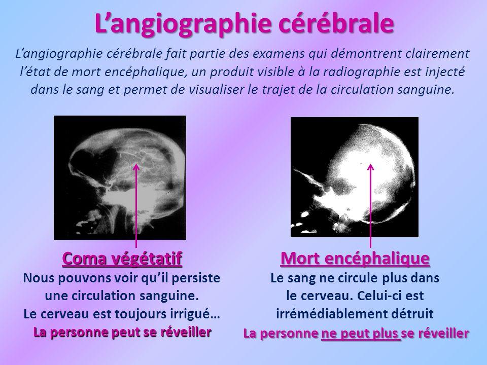 Langiographie cérébrale Langiographie cérébrale fait partie des examens qui démontrent clairement létat de mort encéphalique, un produit visible à la radiographie est injecté dans le sang et permet de visualiser le trajet de la circulation sanguine.
