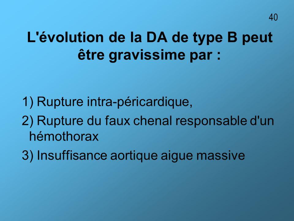 L'évolution de la DA de type B peut être gravissime par : 1) Rupture intra-péricardique, 2) Rupture du faux chenal responsable d'un hémothorax 3) Insu