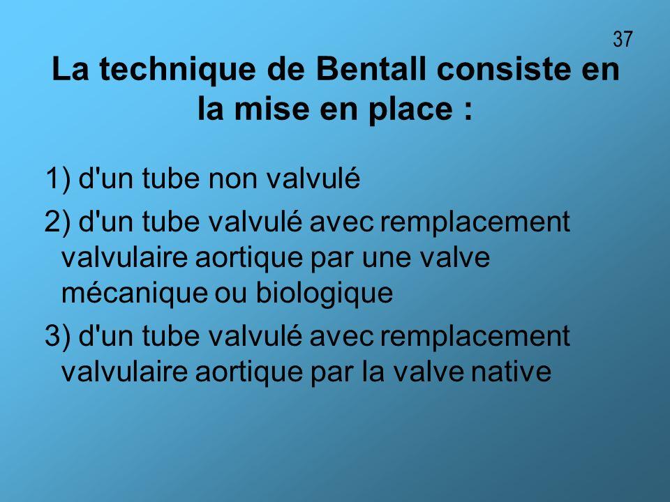 La technique de Bentall consiste en la mise en place : 1) d'un tube non valvulé 2) d'un tube valvulé avec remplacement valvulaire aortique par une val