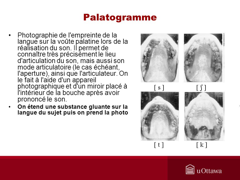 Palatogramme Photographie de l'empreinte de la langue sur la voûte palatine lors de la réalisation du son. Il permet de connaître très précisément le