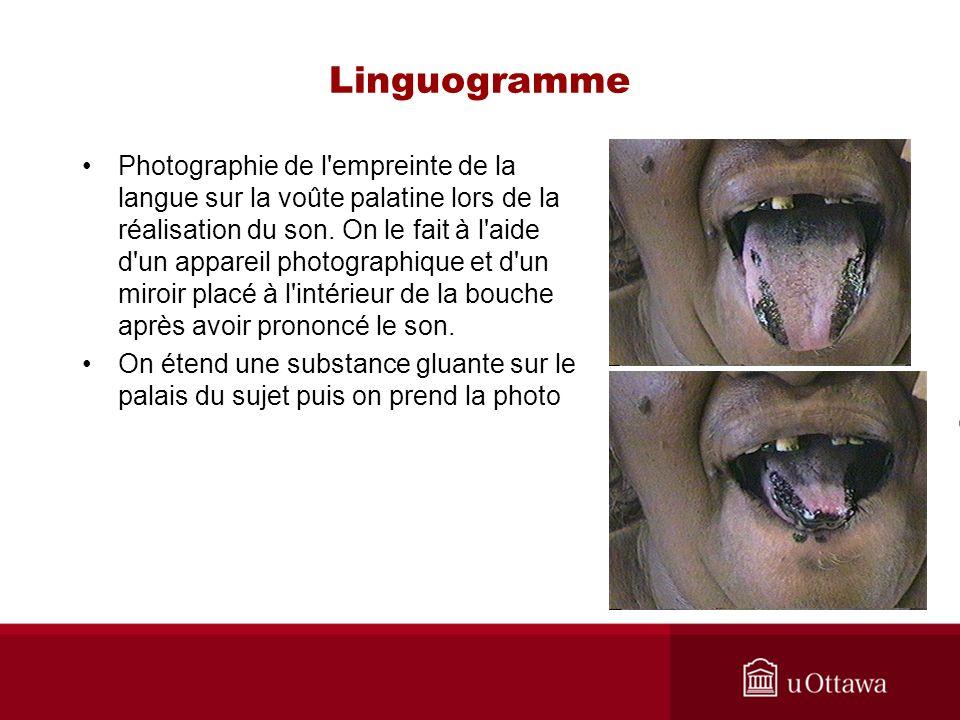 Linguogramme Photographie de l'empreinte de la langue sur la voûte palatine lors de la réalisation du son. On le fait à l'aide d'un appareil photograp