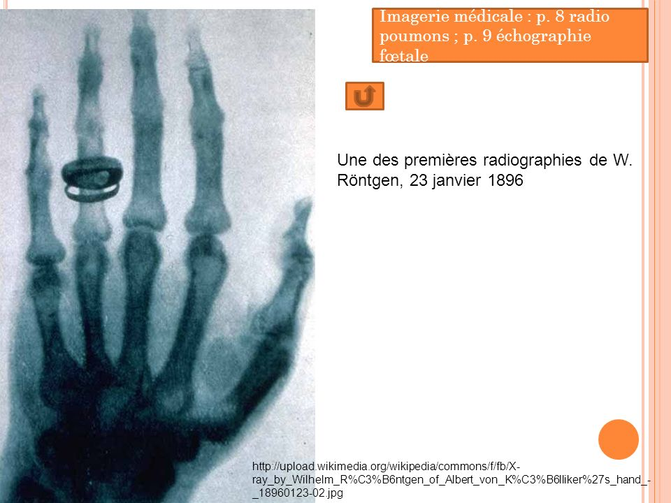 http://upload.wikimedia.org/wikipedia/commons/f/fb/X- ray_by_Wilhelm_R%C3%B6ntgen_of_Albert_von_K%C3%B6lliker%27s_hand_- _18960123-02.jpg Une des prem