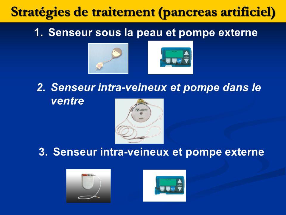 Stratégies de traitement (pancreas artificiel) 1.Senseur sous la peau et pompe externe 2.