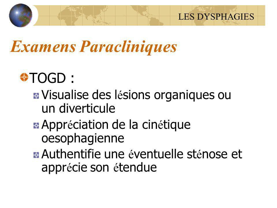 Examens Paracliniques TOGD : Visualise des l é sions organiques ou un diverticule Appr é ciation de la cin é tique oesophagienne Authentifie une é ven