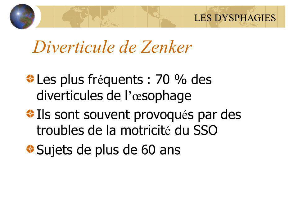 Diverticule de Zenker Les plus fr é quents : 70 % des diverticules de l œ sophage Ils sont souvent provoqu é s par des troubles de la motricit é du SS