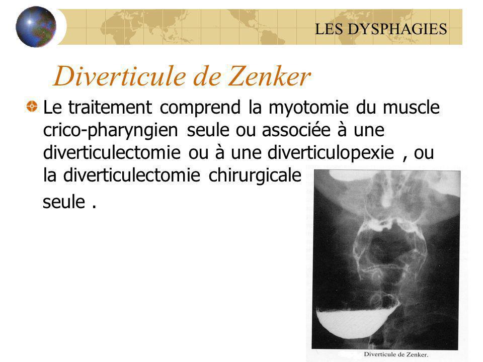Diverticule de Zenker Le traitement comprend la myotomie du muscle crico-pharyngien seule ou associée à une diverticulectomie ou à une diverticulopexi