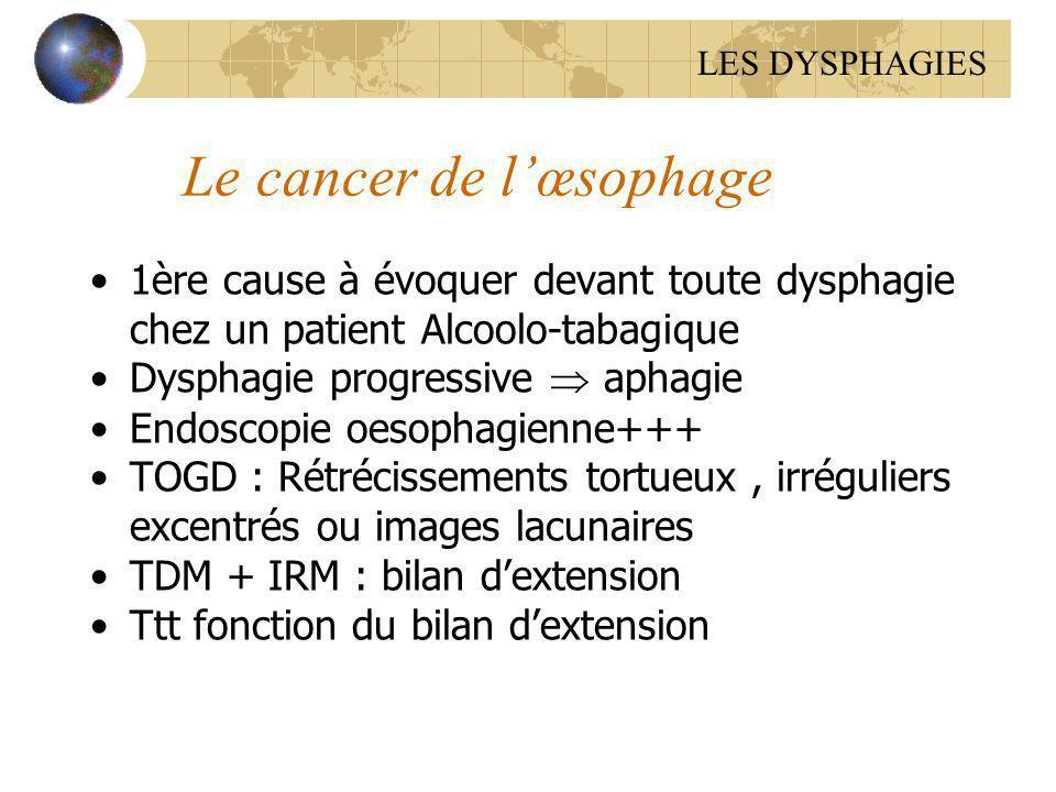 Le cancer de lœsophage 1ère cause à évoquer devant toute dysphagie chez un patient Alcoolo-tabagique Dysphagie progressive aphagie Endoscopie oesophag