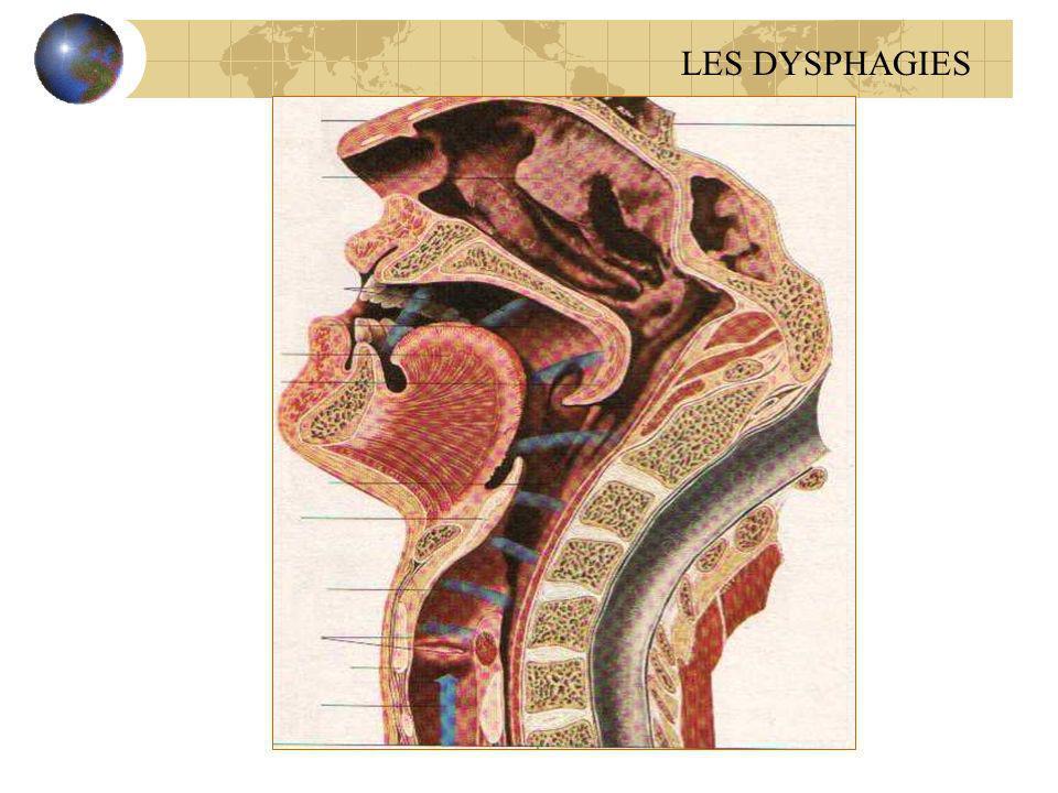 Achalasie du sphincter supérieur de loesophage Sujets âg é s Dysphagie indolore, parfois s é v è re avec des FR Dg : Radiocin é ma et manom é trie (absence de relaxation du SSO) Ttt : myotomie du cricopharyngien LES DYSPHAGIES