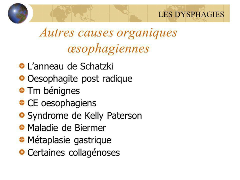 Autres causes organiques œsophagiennes Lanneau de Schatzki Oesophagite post radique Tm bénignes CE oesophagiens Syndrome de Kelly Paterson Maladie de