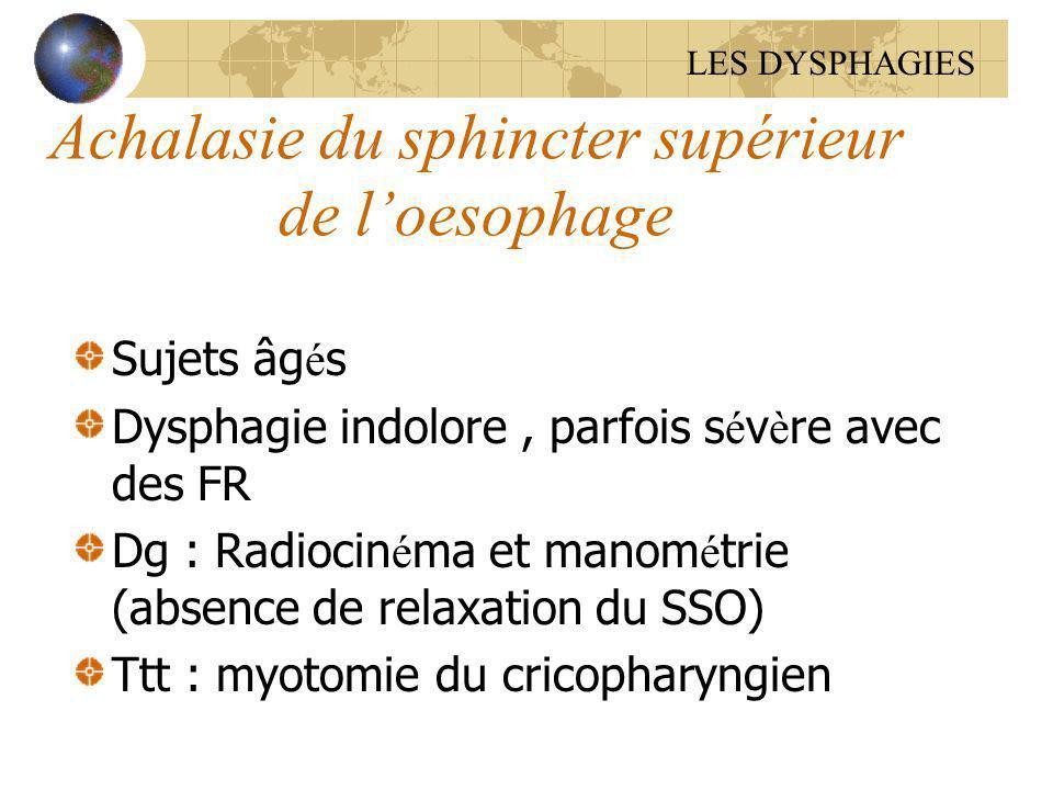Achalasie du sphincter supérieur de loesophage Sujets âg é s Dysphagie indolore, parfois s é v è re avec des FR Dg : Radiocin é ma et manom é trie (ab