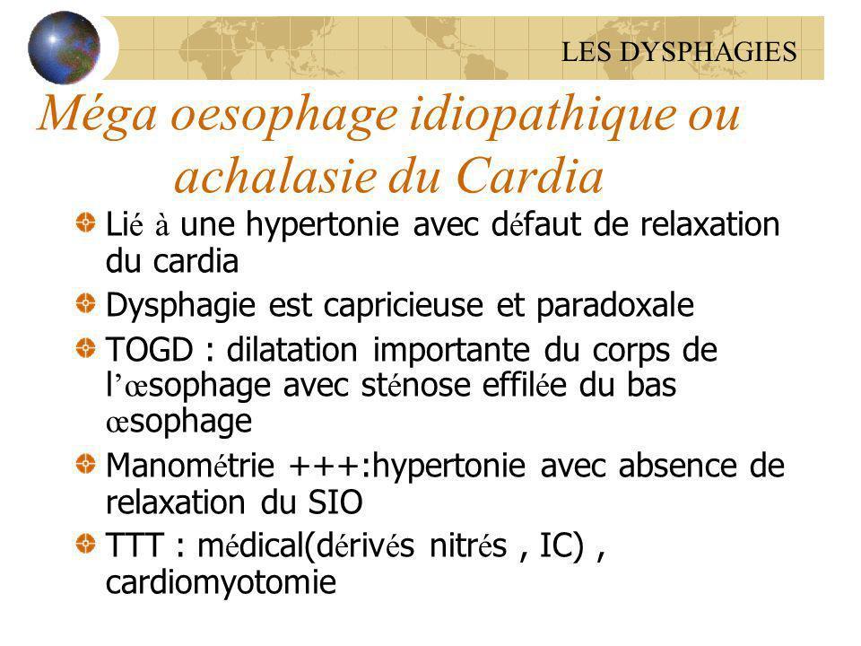 Méga oesophage idiopathique ou achalasie du Cardia Li é à une hypertonie avec d é faut de relaxation du cardia Dysphagie est capricieuse et paradoxale