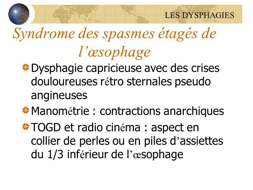 Syndrome des spasmes étagés de lœsophage Dysphagie capricieuse avec des crises douloureuses r é tro sternales pseudo angineuses Manom é trie : contrac