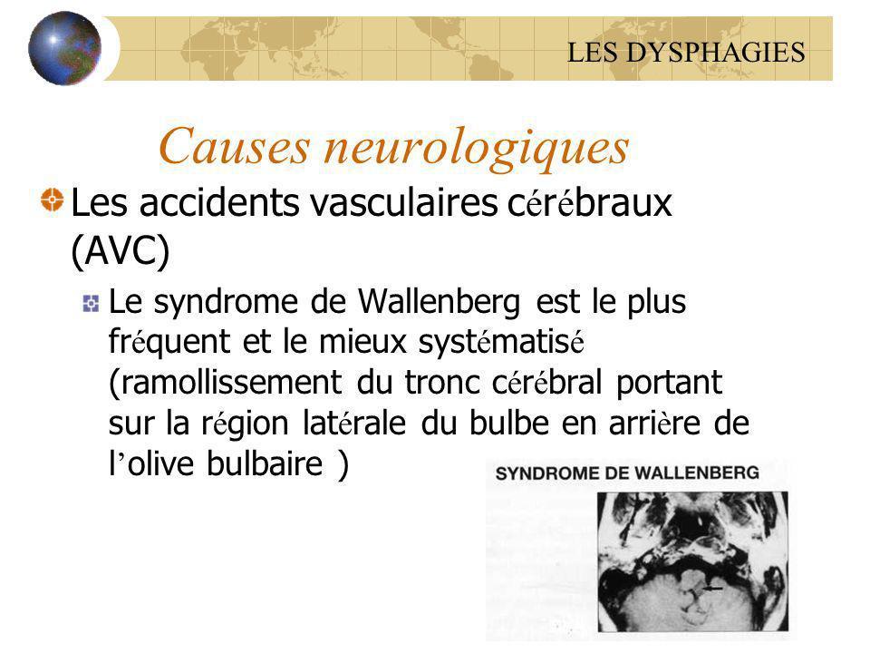 Causes neurologiques Les accidents vasculaires c é r é braux (AVC) Le syndrome de Wallenberg est le plus fr é quent et le mieux syst é matis é (ramoll