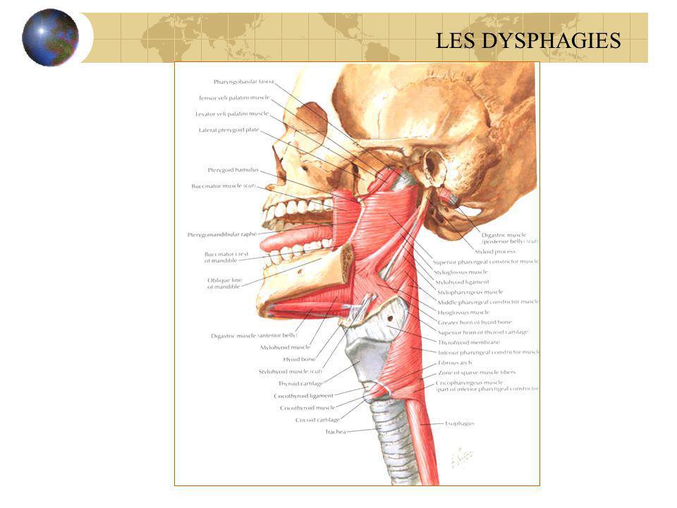 Méga oesophage idiopathique ou achalasie du Cardia Li é à une hypertonie avec d é faut de relaxation du cardia Dysphagie est capricieuse et paradoxale TOGD : dilatation importante du corps de l œ sophage avec st é nose effil é e du bas œ sophage Manom é trie +++:hypertonie avec absence de relaxation du SIO TTT : m é dical(d é riv é s nitr é s, IC), cardiomyotomie LES DYSPHAGIES