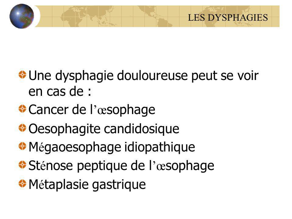 Une dysphagie douloureuse peut se voir en cas de : Cancer de l œ sophage Oesophagite candidosique M é gaoesophage idiopathique St é nose peptique de l