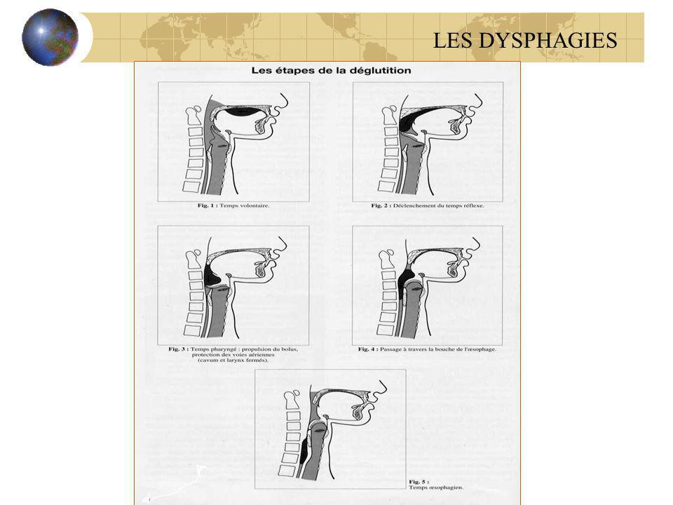 Examen clinique Examen neurologique Examen des paires crâniennes ( V, VII, IX,X,XI) Recherche d un signe d AVC, de myopathies, ou autre affection neurologique LES DYSPHAGIES