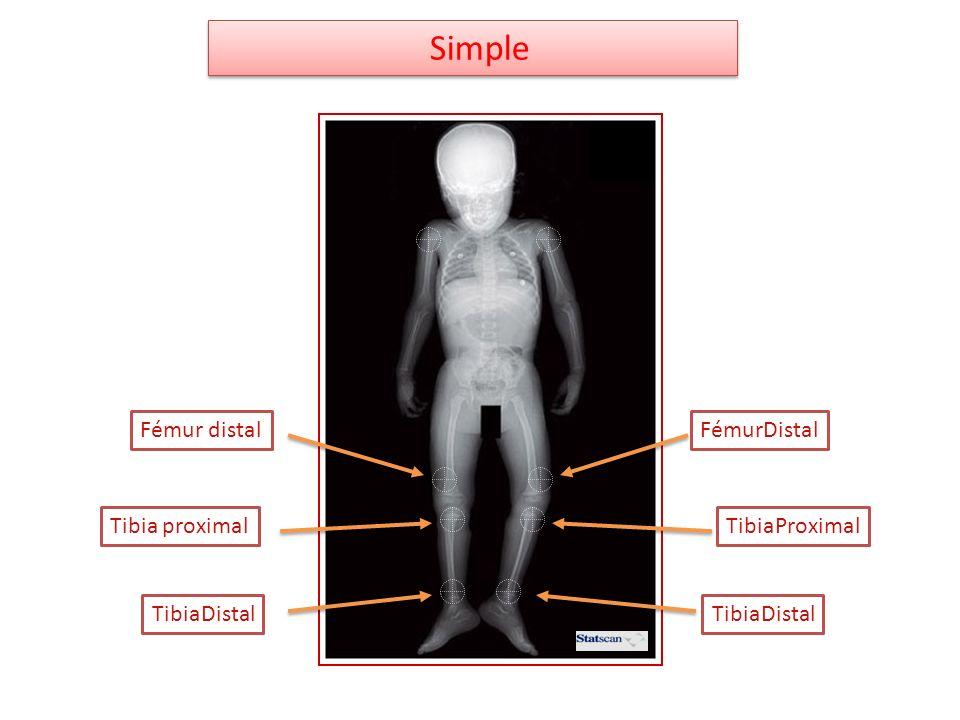 Tibia proximalTibiaProximal TibiaDistal FémurDistalFémur distal Simple