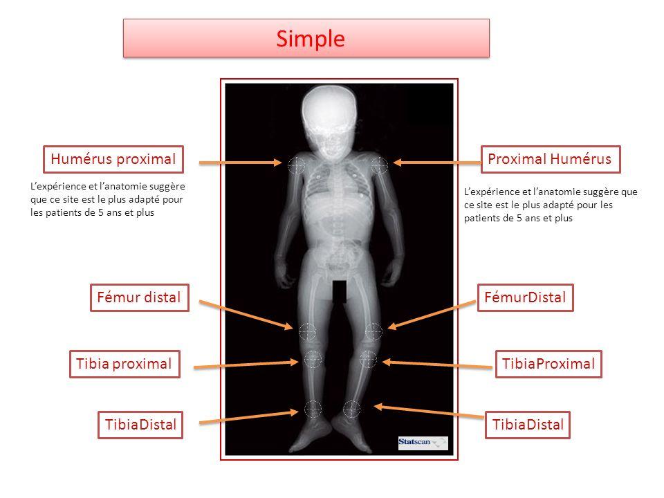 Humérus proximalProximal Humérus Tibia proximalTibiaProximal TibiaDistal FémurDistalFémur distal Simple Lexpérience et lanatomie suggère que ce site e