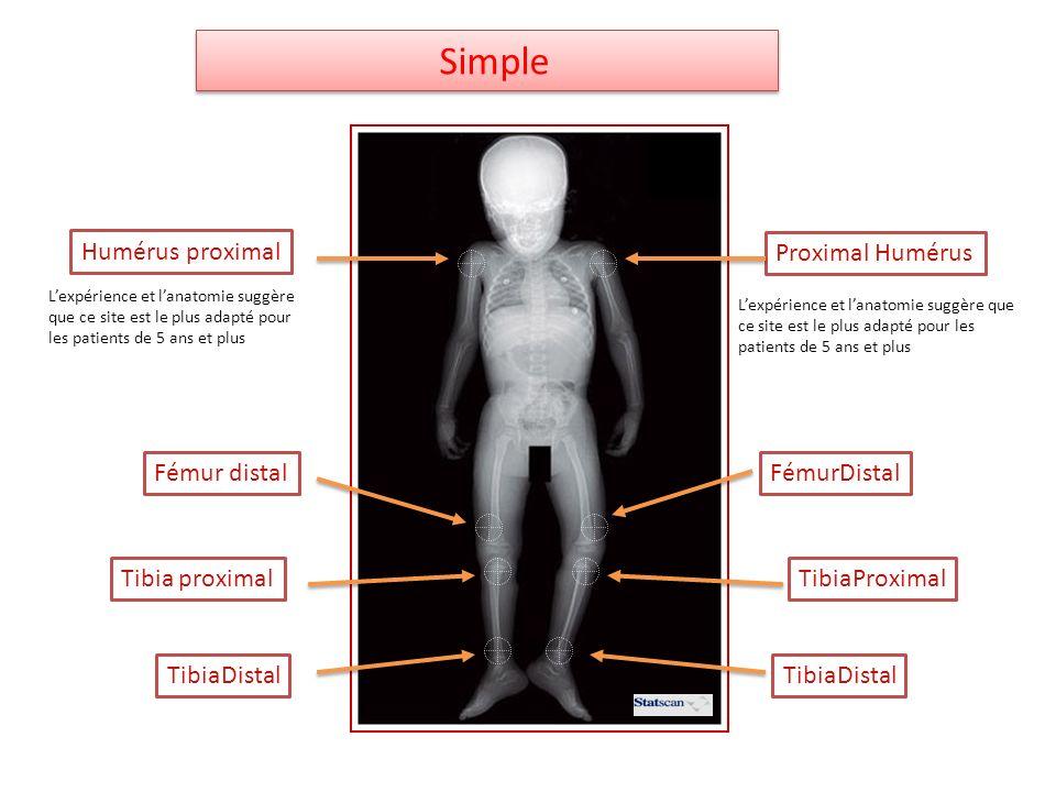 Humérus proximal Proximal Humérus Tibia proximalTibiaProximal TibiaDistal FémurDistalFémur distal Simple Lexpérience et lanatomie suggère que ce site
