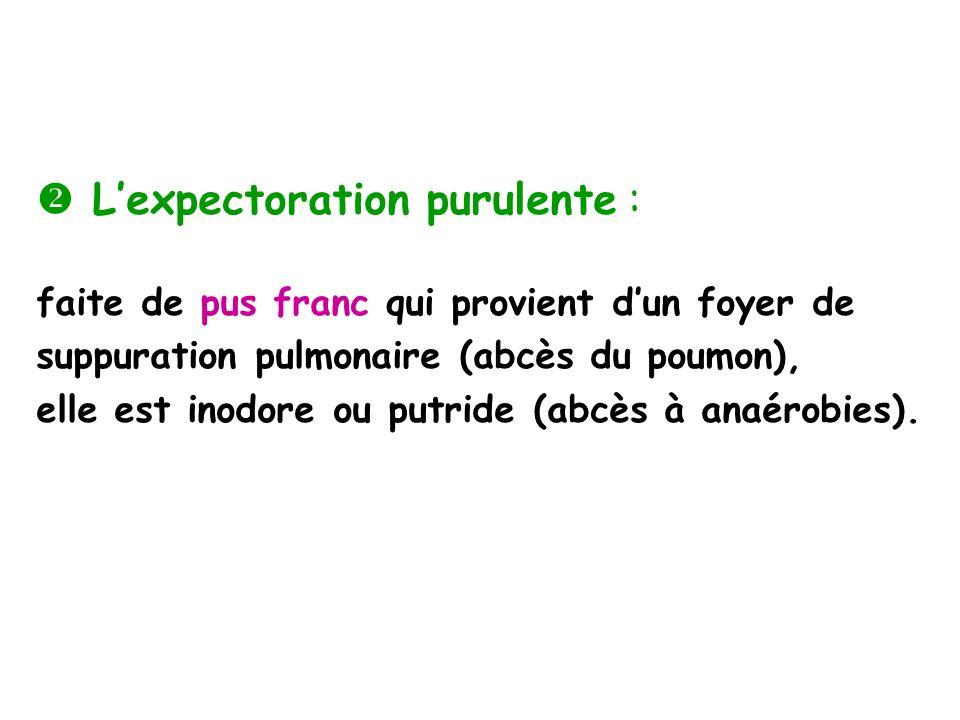 Lexpectoration purulente : faite de pus franc qui provient dun foyer de suppuration pulmonaire (abcès du poumon), elle est inodore ou putride (abcès à anaérobies).