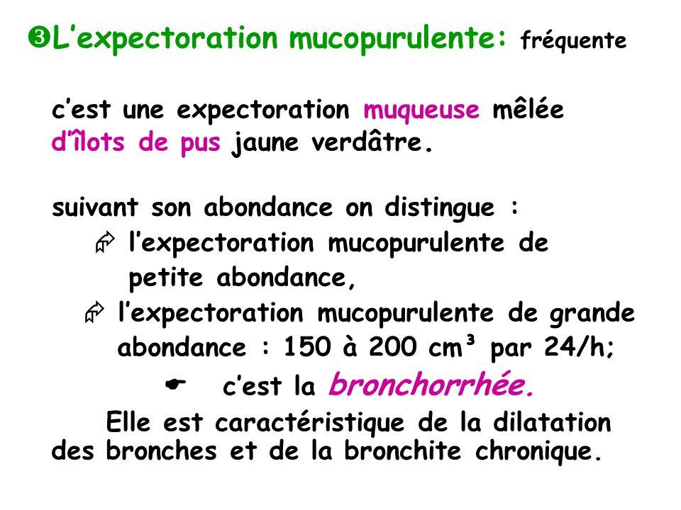 Lexpectoration mucopurulente: fréquente cest une expectoration muqueuse mêlée dîlots de pus jaune verdâtre.