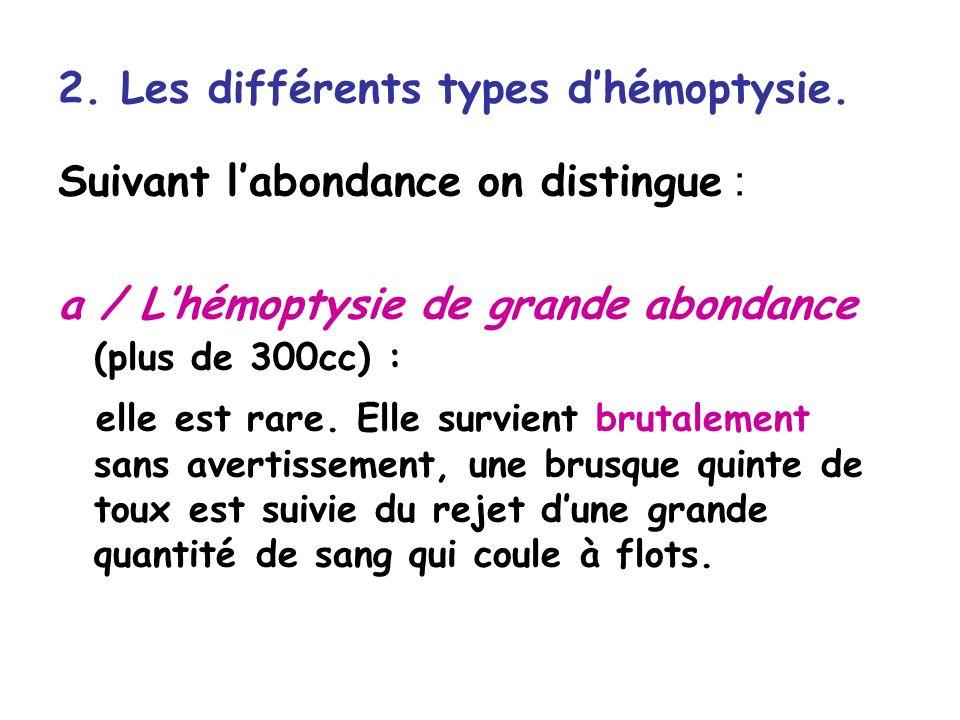 2.Les différents types dhémoptysie.