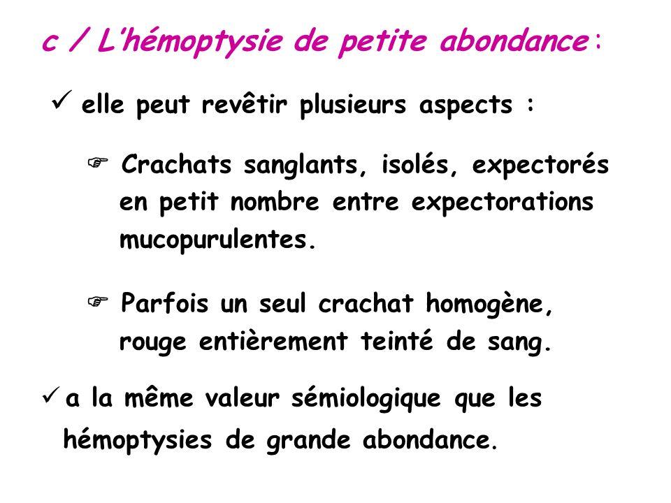 c / Lhémoptysie de petite abondance : elle peut revêtir plusieurs aspects : Crachats sanglants, isolés, expectorés en petit nombre entre expectorations mucopurulentes.
