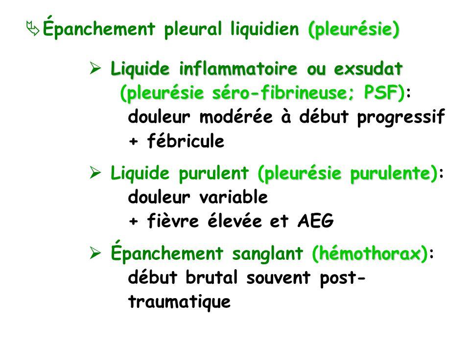 (pleurésie) Épanchement pleural liquidien (pleurésie) Liquide inflammatoire ou exsudat pleurésie séro-fibrineuse; PSF (pleurésie séro-fibrineuse; PSF): douleur modérée à début progressif + fébricule pleurésie purulente Liquide purulent (pleurésie purulente): douleur variable + fièvre élevée et AEG hémothorax Épanchement sanglant (hémothorax): début brutal souvent post- traumatique