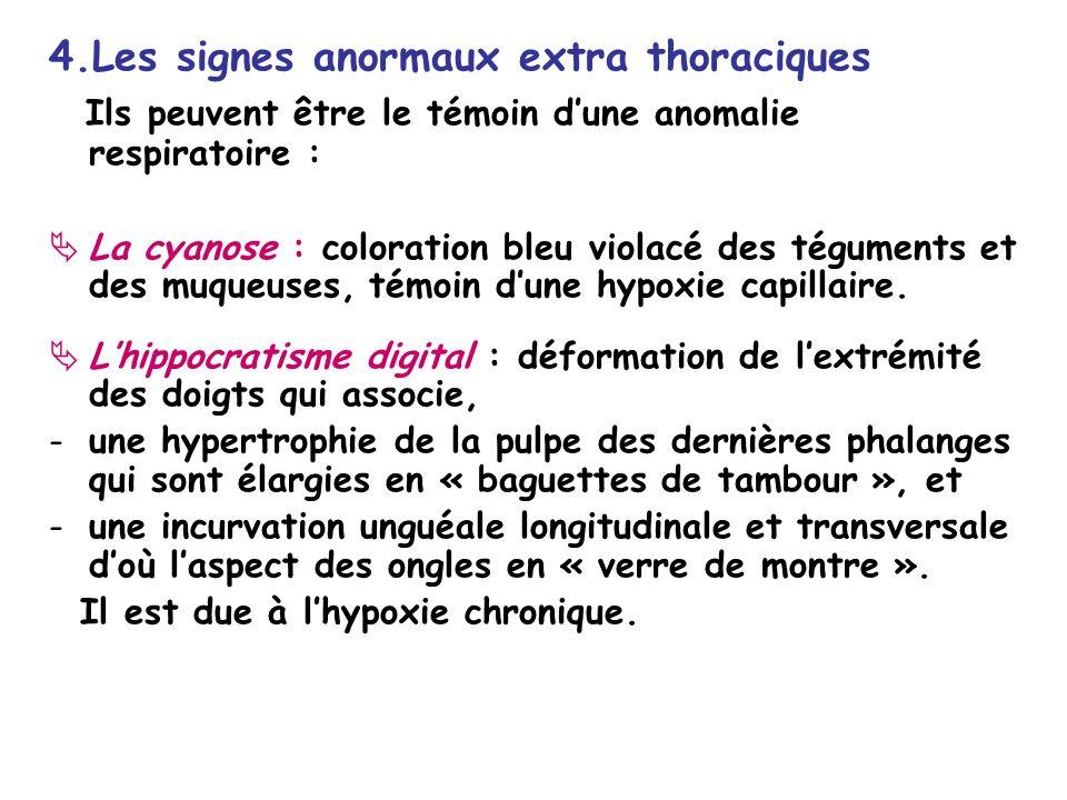4.Les signes anormaux extra thoraciques Ils peuvent être le témoin dune anomalie respiratoire : La cyanose : coloration bleu violacé des téguments et des muqueuses, témoin dune hypoxie capillaire.