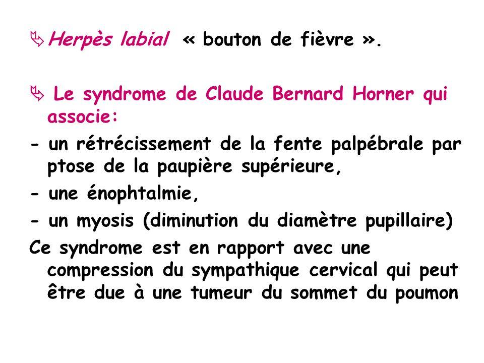 Herpès labial « bouton de fièvre ».